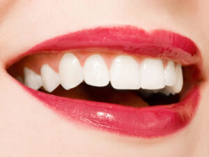 White Teeth 300x225 Cosmetic Veneers Dentist Macomb Twp MI