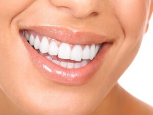 whitening 2 300x225 Teeth Whitening Dentist Macomb Twp MI